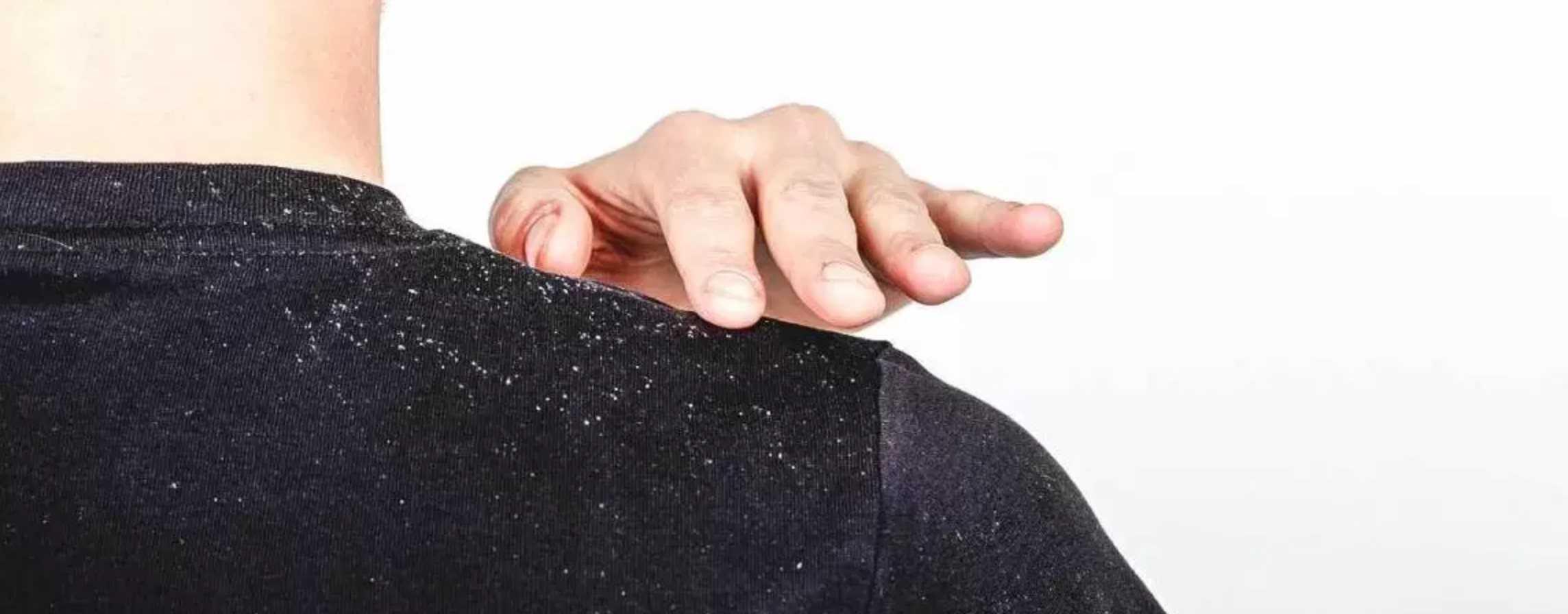 Gambar Shampo Anti Ketombe yang AMpuh